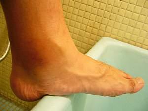 がーん、足がむくんでゾウの足に・・・