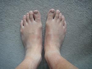 足が浮腫んでパンパンになっとる。